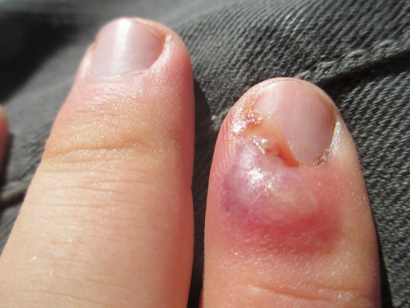 ingrown fingernail
